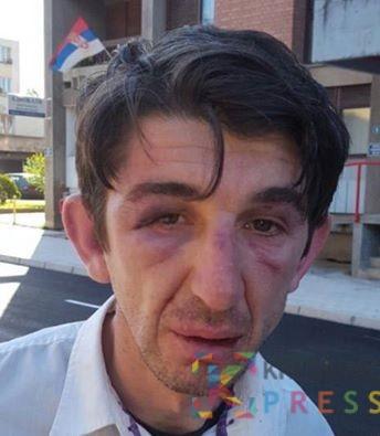 Verkan Gvozdenović nakon bliskog susreta sa aktivistima SNS
