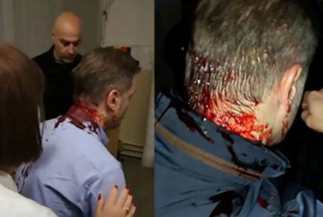 """BOŠKO OBRADOVIĆ: """"Napad na Stefanovića je pokušaj ubistva!"""""""