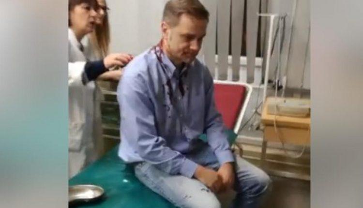 NAKON ČETIRI MESECA: Podignuta optužnica zbog napada na Borka Stefanovića!